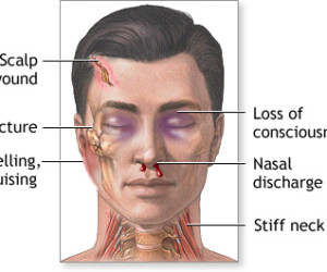 Possible Effects of Head Injuries