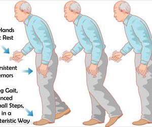 Idiopathic Parkinsonism, Paralysis Agitans
