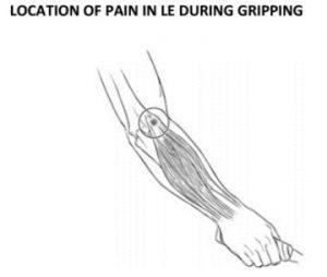 Tennis Elbow (or) Lateral Epicondylitis
