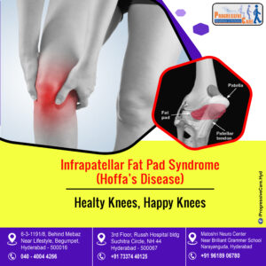Infrapatellar Fat Pad Syndrome (or) Hoffa's Disease