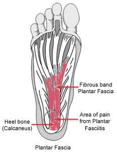 Plantar-Fasciosis, Plantar-Fasciopathy, Jogger's-Heel, Heel-Spur-Syndrome
