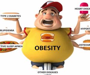 Obesity, overweightness, rotundness