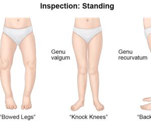 Knee Hyperextension