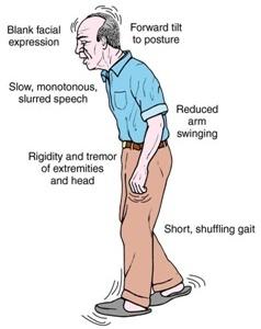 Parkinson's Disease, Idiopathic Parkinsonism, Paralysis agitans