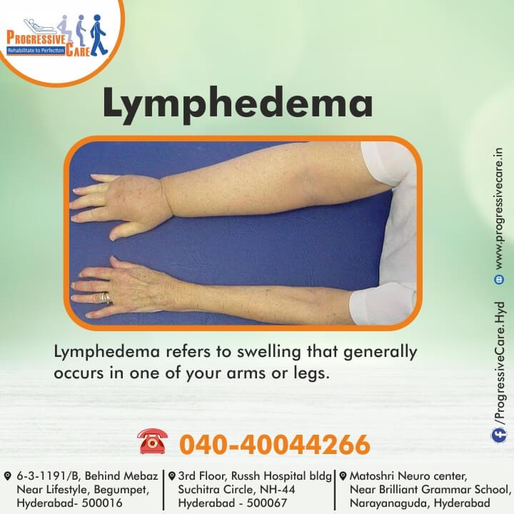 Lymphedema (or) Lymphoedema